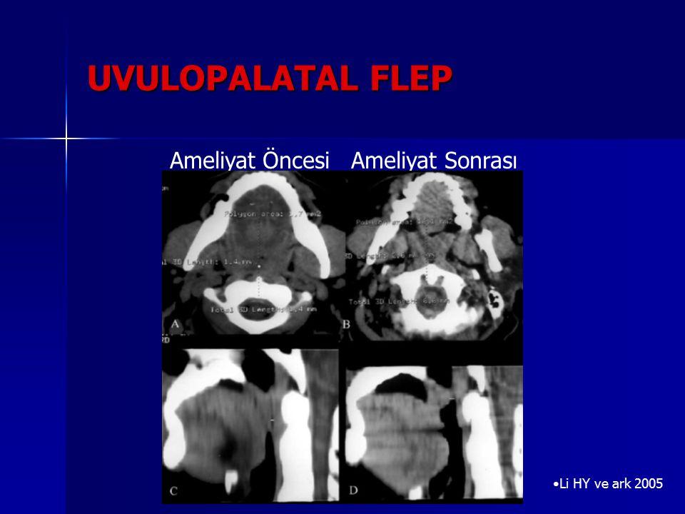 UVULOPALATAL FLEP Li HY ve ark 2005 Ameliyat Öncesi Ameliyat Sonrası