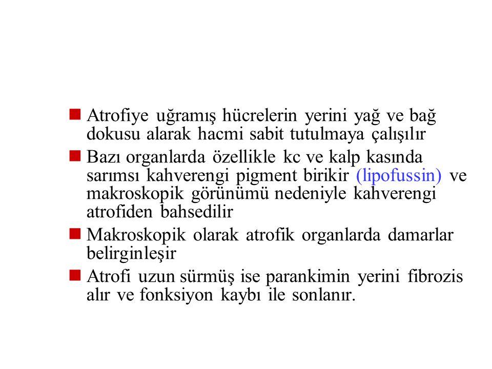 Atrofiye yol açan sebepler 1- İş yükü ve kan temininde azalma 2- Yetersiz beslenme 3- Endokrin stimülasyonun azalması 4- İnnervasyon kaybı 5- Yaşlanma