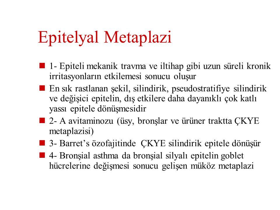 Metaplazi Diferansiye bir hücrenin yerini başka differansiye bir hücrenin almasıdır Epitelyal veya mezenşimal ob Metaplazi reversibl bir değişikliktir