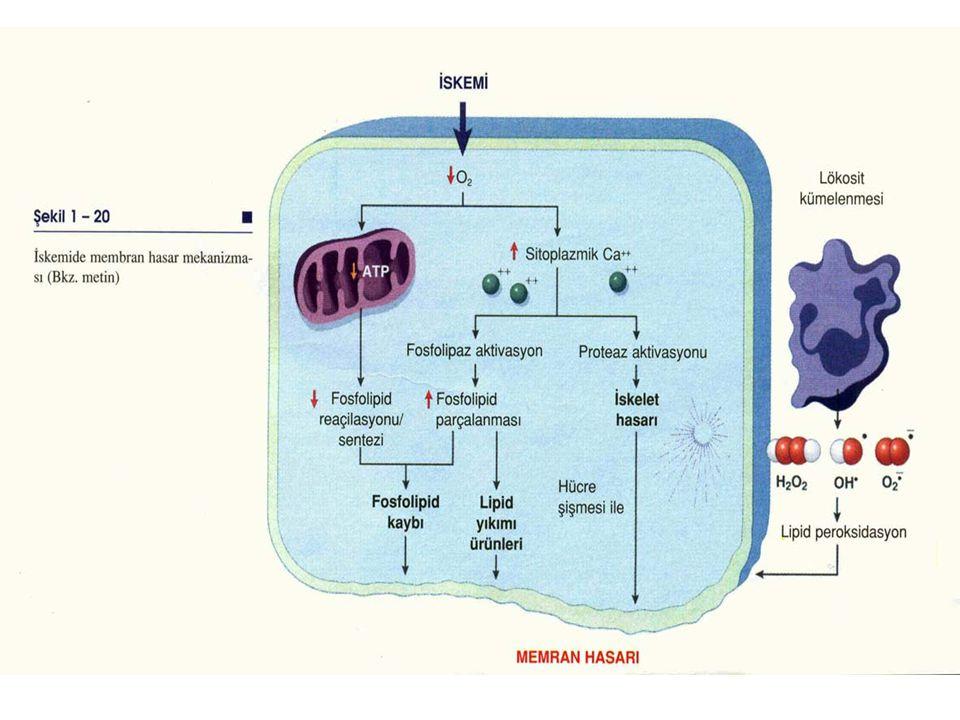 4- Lipit yıkım ürünleri Fosfolipit parçalanması sonucu iskemik hücrelerde biriken bu katabolik ürünler membranlar üzerinde deterjan etkisi yapar.