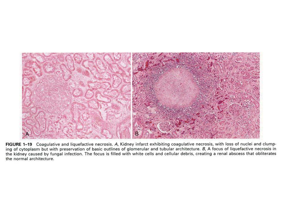 Makroskopik olarak; ortası hücresel artıklar ve lökosiler içeren sıvı ile dolu olan nekroz alanı yumuşaktır Zamanla sıvı rezorbe olarak kistik görünüm