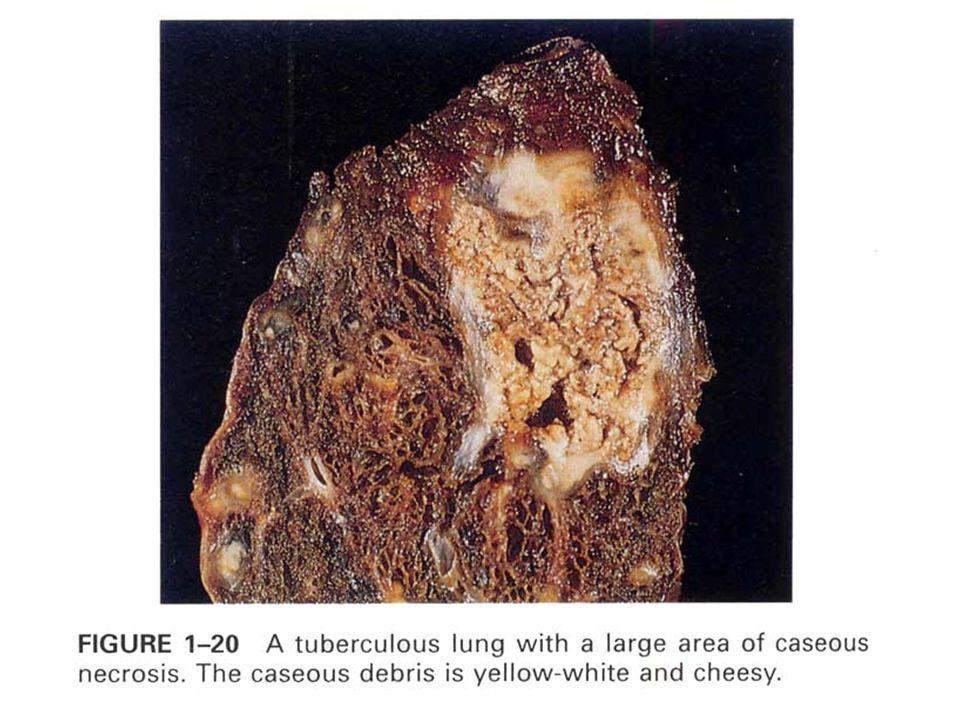 Kazeifikasyon Nekrozu (peynirleşme) Koagülasyon nekrozunun özel şeklidir Koagülasyon ve likefaksiyon biraradadır Tüberküloz için karakteristik olmakla