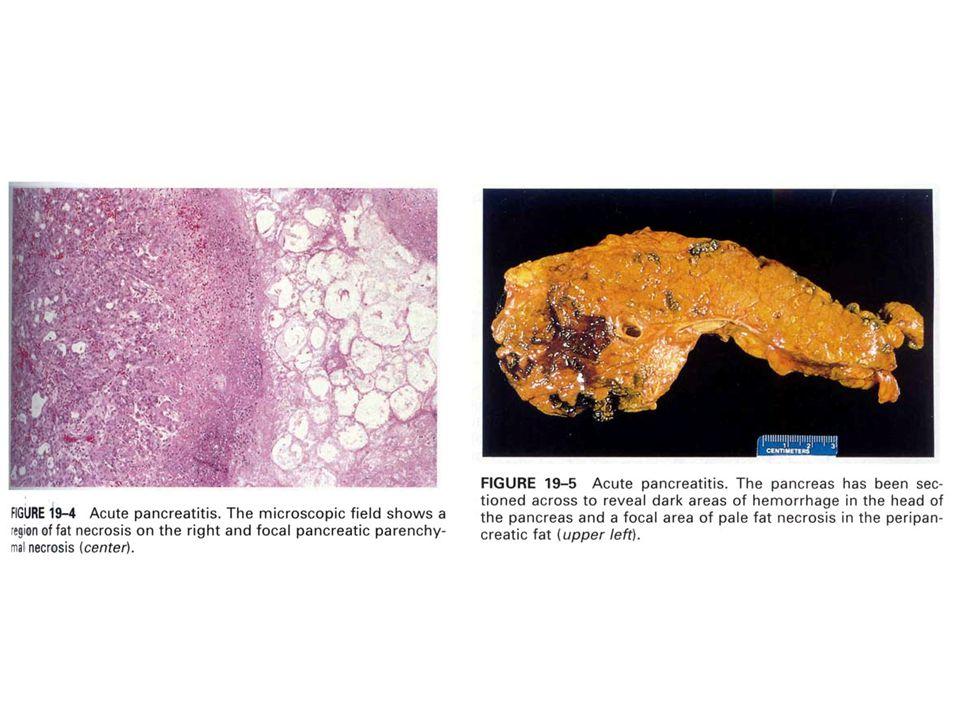 2- Travmatik Yağ Nekrozu: Meme dokusunda, karın ve ekstremitelerde deri altı yağ dokusunda görülür. Travma sonucu hücrelerden açığa çıkan yağlar iltih