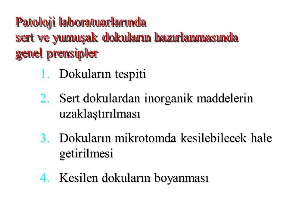 DEKALSİFİKASYON (Demineralizasyon) Önce tespit .Önce tespit .