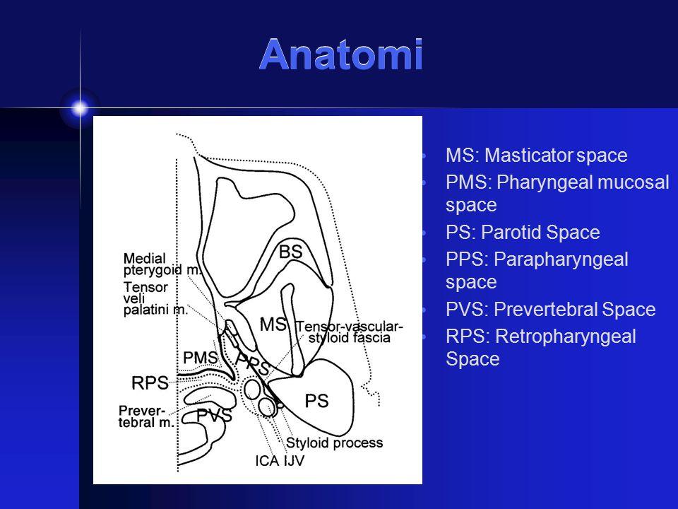 MS: Masticator space PMS: Pharyngeal mucosal space PS: Parotid Space PPS: Parapharyngeal space PVS: Prevertebral Space RPS: Retropharyngeal Space