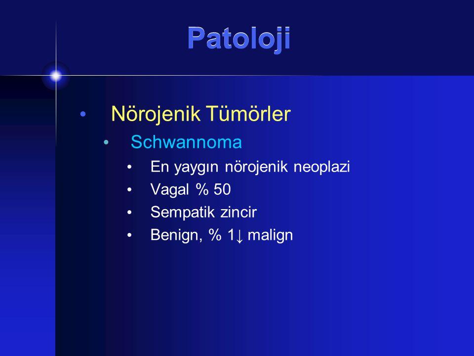 Patoloji Nörojenik Tümörler Schwannoma En yaygın nörojenik neoplazi Vagal % 50 Sempatik zincir Benign, % 1↓ malign