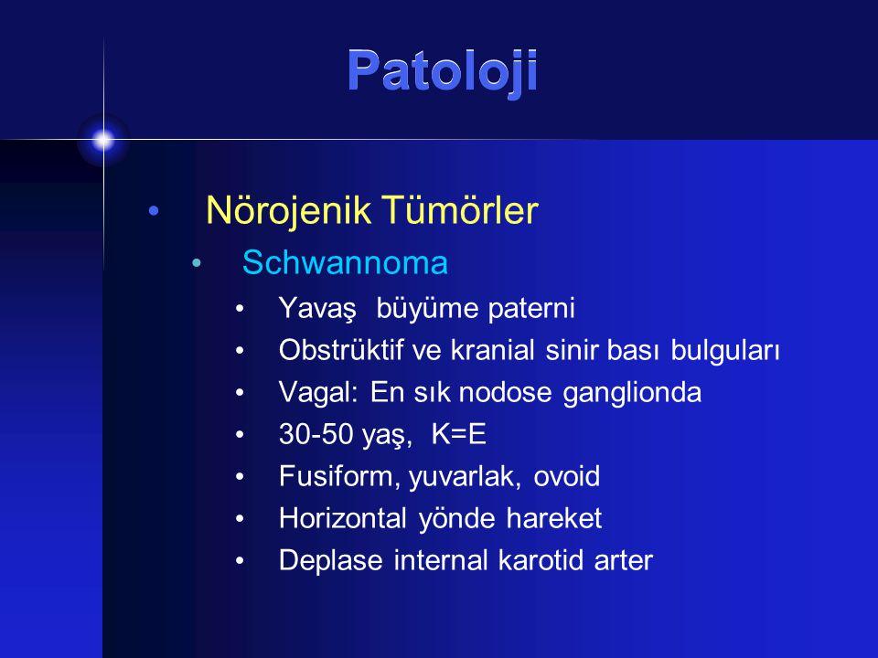 Patoloji Nörojenik Tümörler Schwannoma Yavaş büyüme paterni Obstrüktif ve kranial sinir bası bulguları Vagal: En sık nodose ganglionda 30-50 yaş, K=E