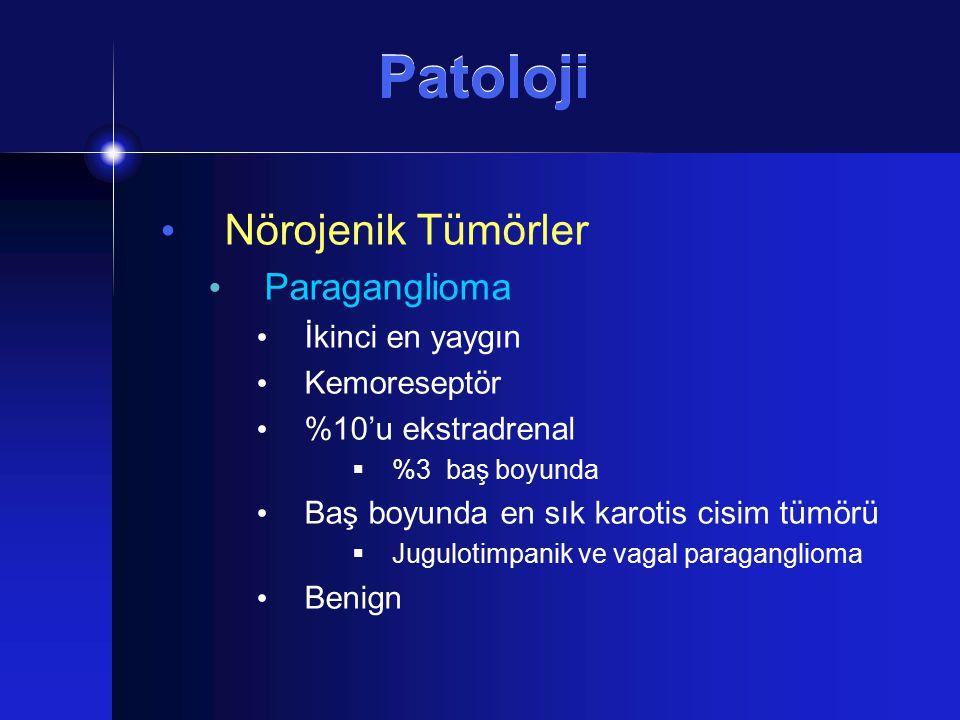 Patoloji Nörojenik Tümörler Paraganglioma İkinci en yaygın Kemoreseptör %10'u ekstradrenal  %3 baş boyunda Baş boyunda en sık karotis cisim tümörü 
