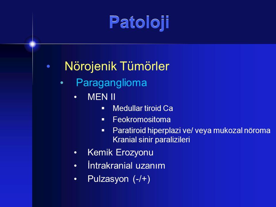 Patoloji Nörojenik Tümörler Paraganglioma MEN II  Medullar tiroid Ca  Feokromositoma  Paratiroid hiperplazi ve/ veya mukozal nöroma Kranial sinir p