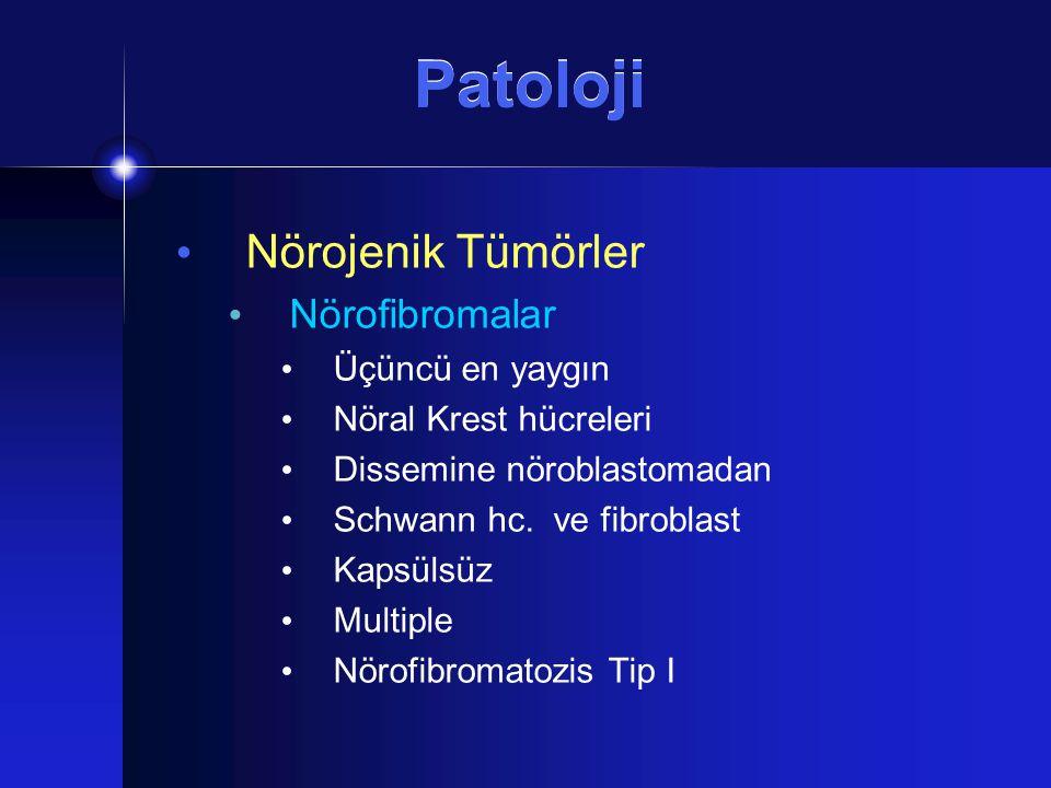 Patoloji Nörojenik Tümörler Nörofibromalar Üçüncü en yaygın Nöral Krest hücreleri Dissemine nöroblastomadan Schwann hc. ve fibroblast Kapsülsüz Multip