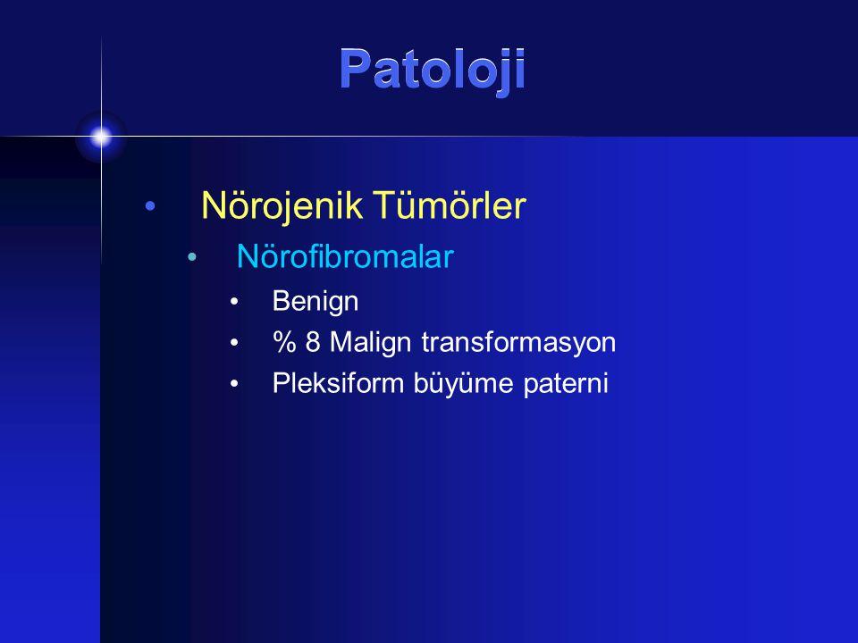 Patoloji Nörojenik Tümörler Nörofibromalar Benign % 8 Malign transformasyon Pleksiform büyüme paterni