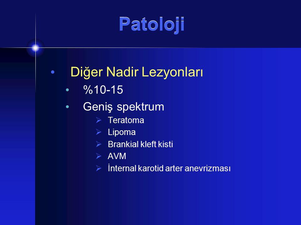 Patoloji Diğer Nadir Lezyonları %10-15 Geniş spektrum  Teratoma  Lipoma  Brankial kleft kisti  AVM  İnternal karotid arter anevrizması