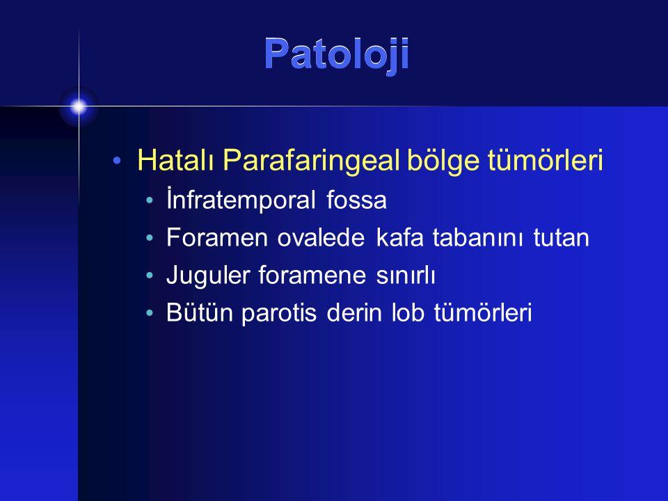 Patoloji Hatalı Parafaringeal bölge tümörleri İnfratemporal fossa Foramen ovalede kafa tabanını tutan Juguler foramene sınırlı Bütün parotis derin lob