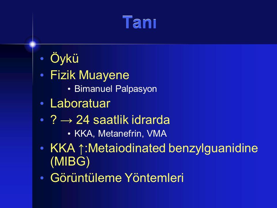 Tanı Öykü Fizik Muayene Bimanuel Palpasyon Laboratuar ? → 24 saatlik idrarda KKA, Metanefrin, VMA KKA ↑:Metaiodinated benzylguanidine (MIBG) Görüntüle