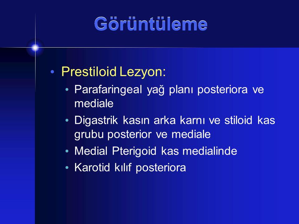 Görüntüleme Prestiloid Lezyon: Parafaringeal yağ planı posteriora ve mediale Digastrik kasın arka karnı ve stiloid kas grubu posterior ve mediale Medi