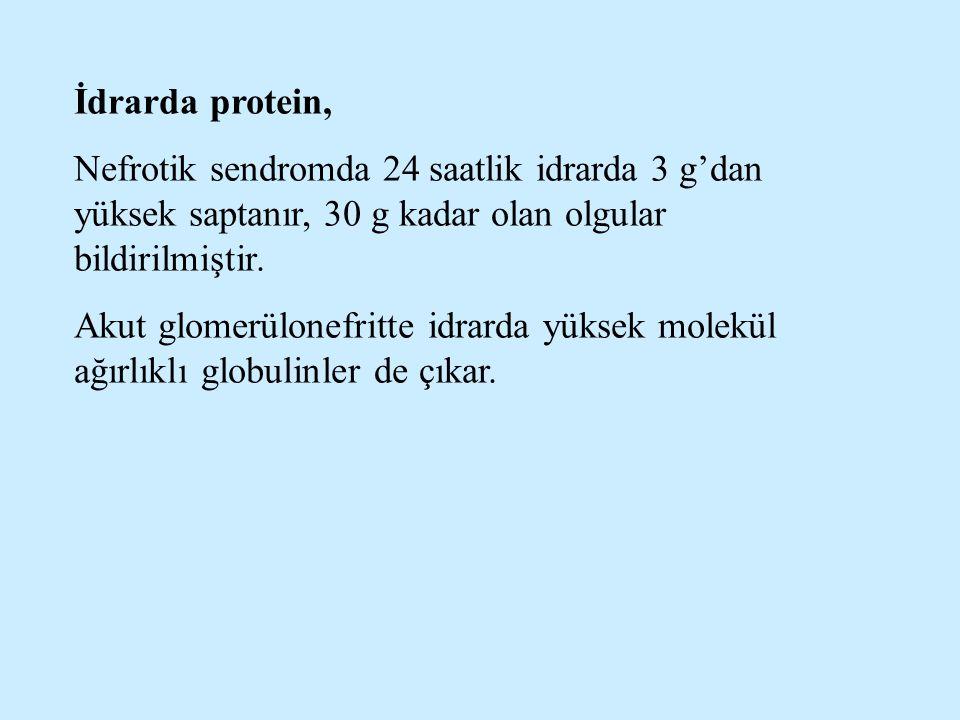 İdrarda protein, Nefrotik sendromda 24 saatlik idrarda 3 g'dan yüksek saptanır, 30 g kadar olan olgular bildirilmiştir. Akut glomerülonefritte idrarda