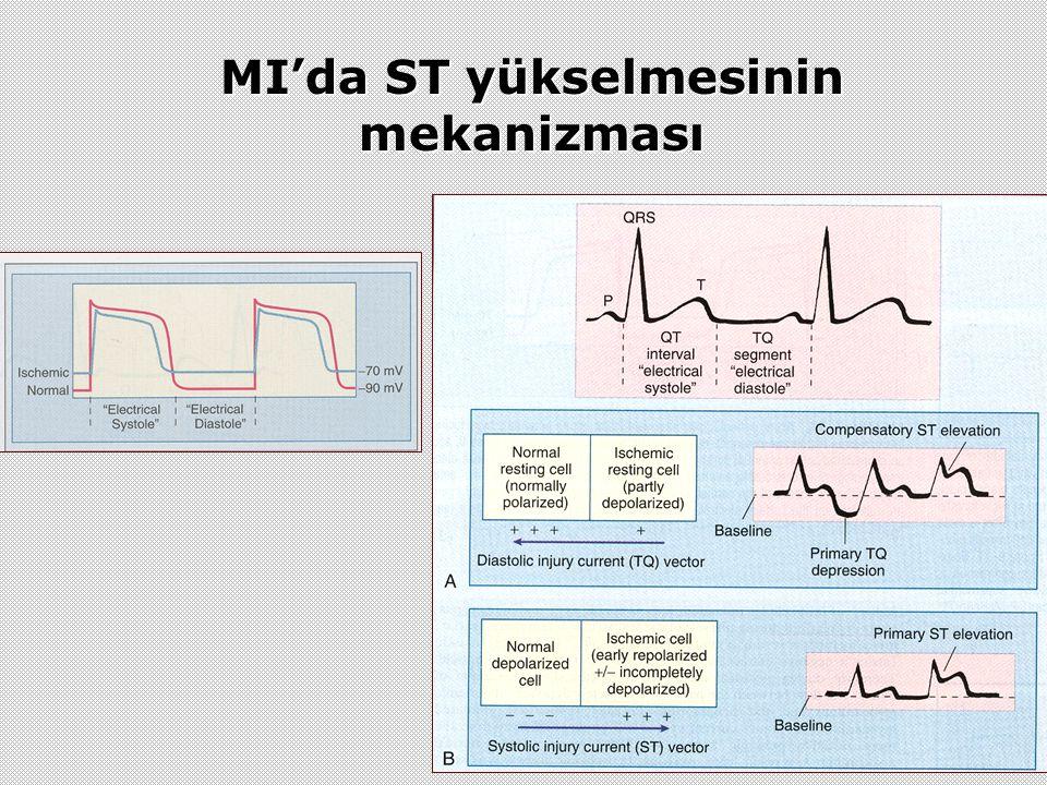 MI'da ST yükselmesinin mekanizması
