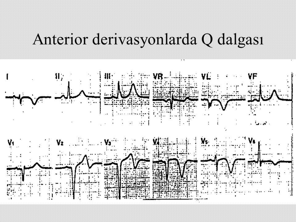 Anterior derivasyonlarda Q dalgası