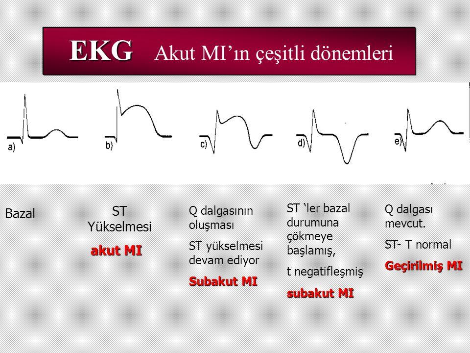 EKG EKG Akut MI'ın çeşitli dönemleri ST Yükselmesi akut MI akut MI Bazal Q dalgasının oluşması ST yükselmesi devam ediyor Subakut MI ST 'ler bazal durumuna çökmeye başlamış, t negatifleşmiş subakut MI Q dalgası mevcut.