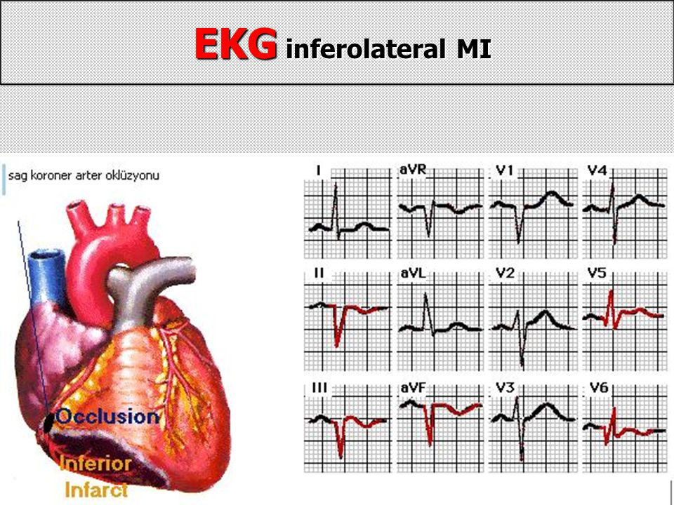 EKG inferolateral MI