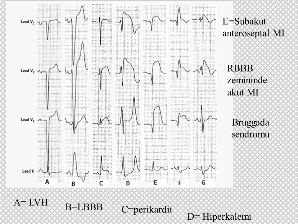 A= LVH B=LBBB C=perikardit D= Hiperkalemi E=Subakut anteroseptal MI RBBB zemininde akut MI Bruggada sendromu