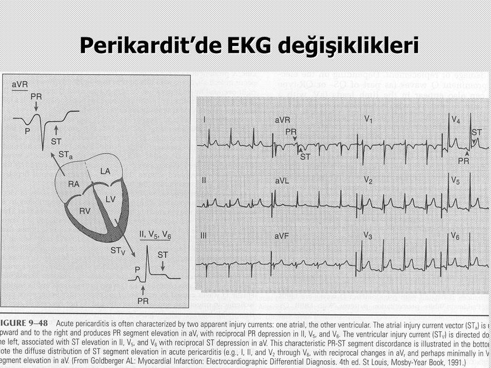 Perikardit'de EKG değişiklikleri