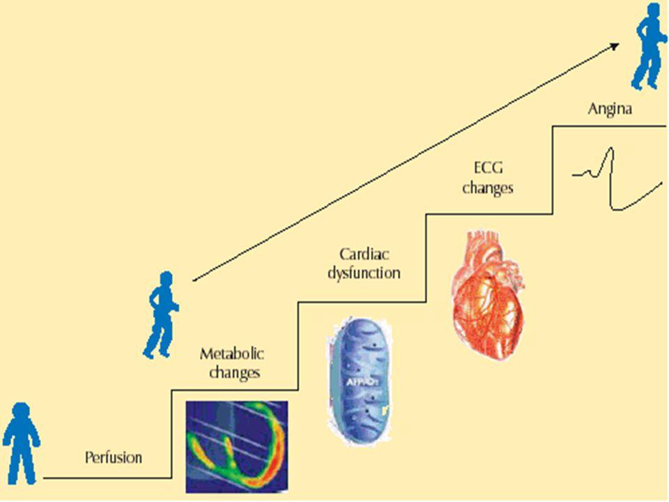Miyokard iskemisi fizyopatoloji