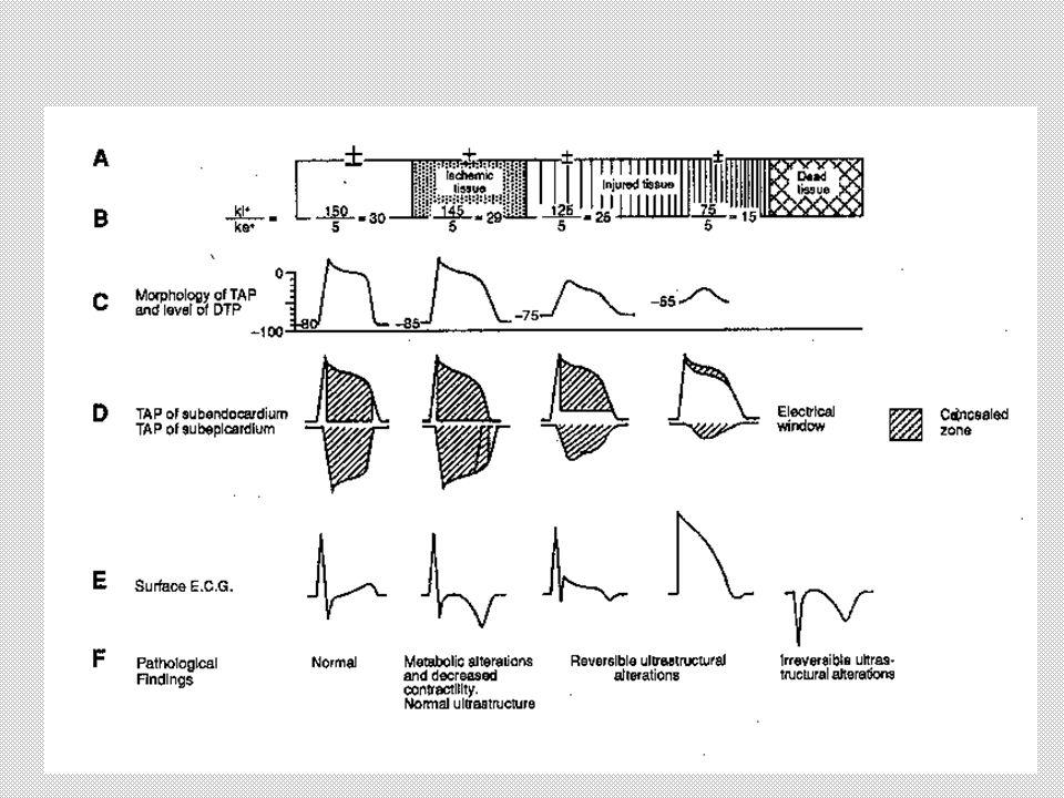 EKG inferolateral MI
