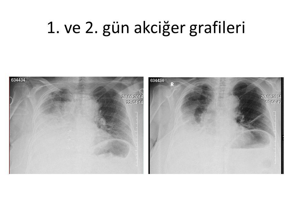 1. ve 2. gün akciğer grafileri