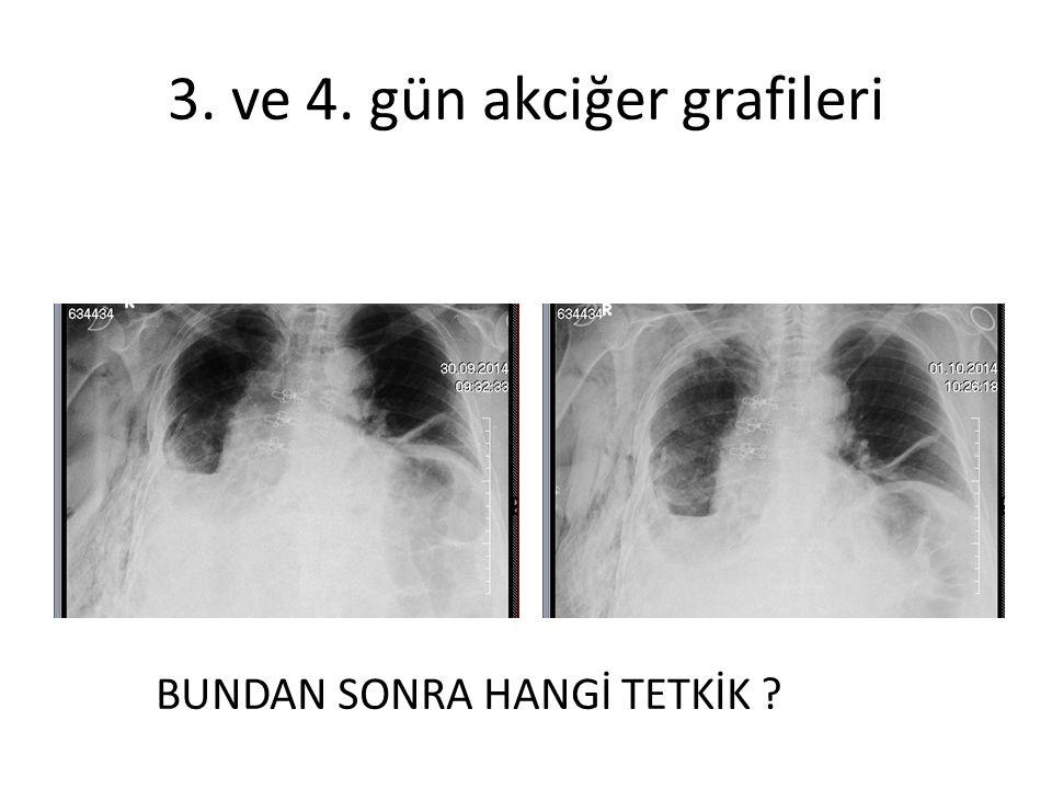 3. ve 4. gün akciğer grafileri BUNDAN SONRA HANGİ TETKİK ?