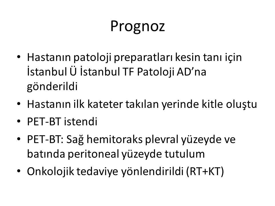 Prognoz Hastanın patoloji preparatları kesin tanı için İstanbul Ü İstanbul TF Patoloji AD'na gönderildi Hastanın ilk kateter takılan yerinde kitle oluştu PET-BT istendi PET-BT: Sağ hemitoraks plevral yüzeyde ve batında peritoneal yüzeyde tutulum Onkolojik tedaviye yönlendirildi (RT+KT)