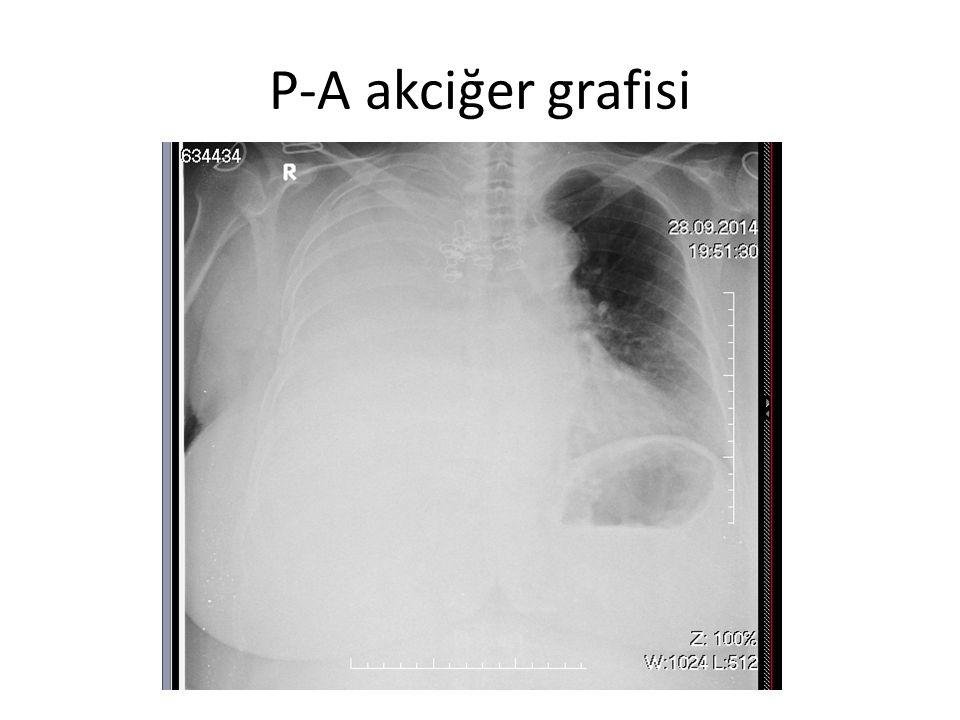 P-A akciğer grafisi