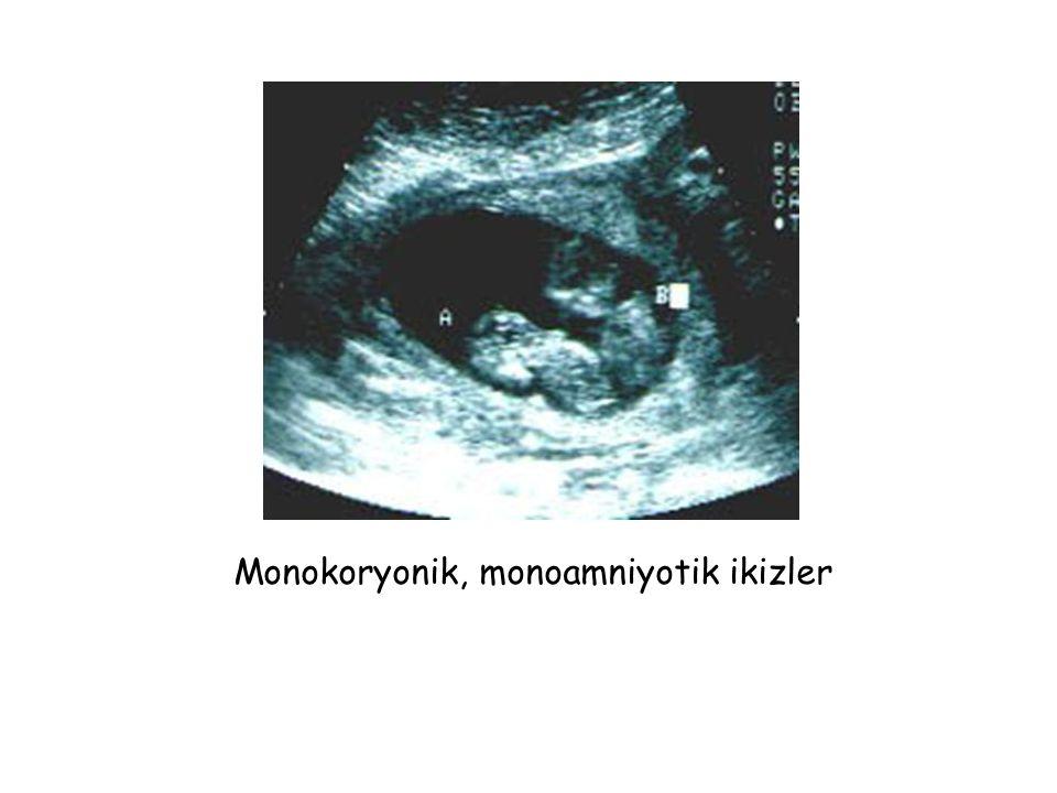 Monokoryonik, monoamniyotik ikizler