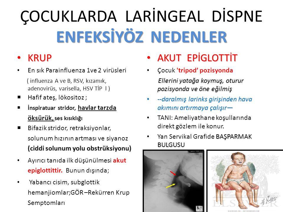 ENFEKSİYÖZ NEDENLER ÇOCUKLARDA LARİNGEAL DİSPNE ENFEKSİYÖZ NEDENLER KRUP KRUP En sık Parainfluenza 1ve 2 virüsleri ( influenza A ve B, RSV, kızamık, a