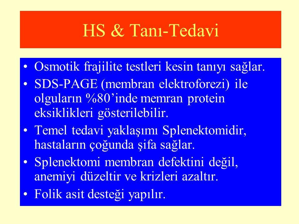 HS & Tanı-Tedavi Osmotik frajilite testleri kesin tanıyı sağlar. SDS-PAGE (membran elektroforezi) ile olguların %80'inde memran protein eksiklikleri g