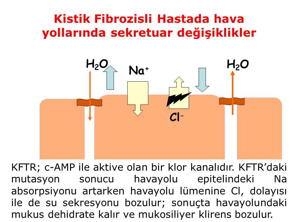 Na + Cl - H2OH2O H2OH2O Kistik Fibrozisli Hastada hava yollarında sekretuar değişiklikler KFTR; c-AMP ile aktive olan bir klor kanalıdır. KFTR'daki mu