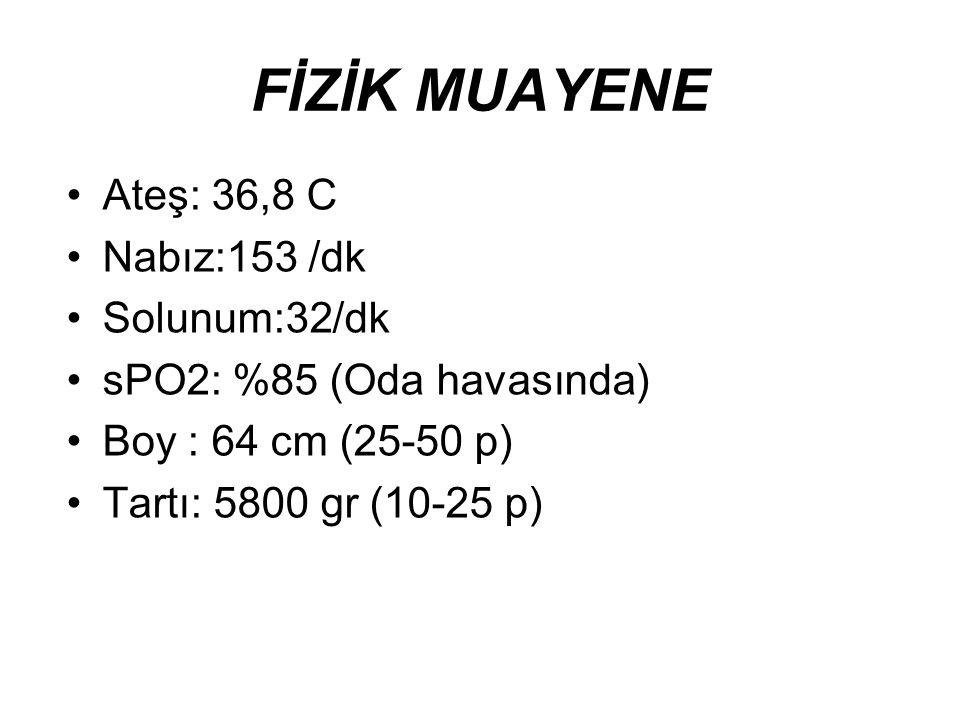 FİZİK MUAYENE Ateş: 36,8 C Nabız:153 /dk Solunum:32/dk sPO2: %85 (Oda havasında) Boy : 64 cm (25-50 p) Tartı: 5800 gr (10-25 p)
