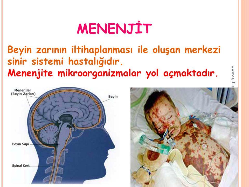 MENENJ İ T Beyin zarının iltihaplanması ile oluşan merkezi sinir sistemi hastalığıdır.