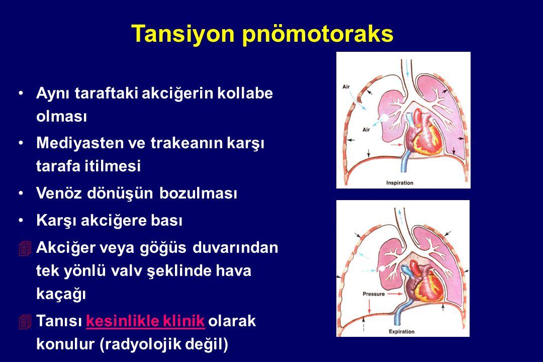 Tansiyon pnömotoraks Aynı taraftaki akciğerin kollabe olması Mediyasten ve trakeanın karşı tarafa itilmesi Venöz dönüşün bozulması Karşı akciğere bası