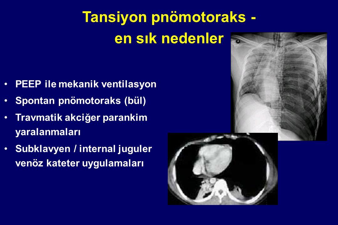 Tansiyon pnömotoraks - en sık nedenler PEEP ile mekanik ventilasyon Spontan pnömotoraks (bül) Travmatik akciğer parankim yaralanmaları Subklavyen / in