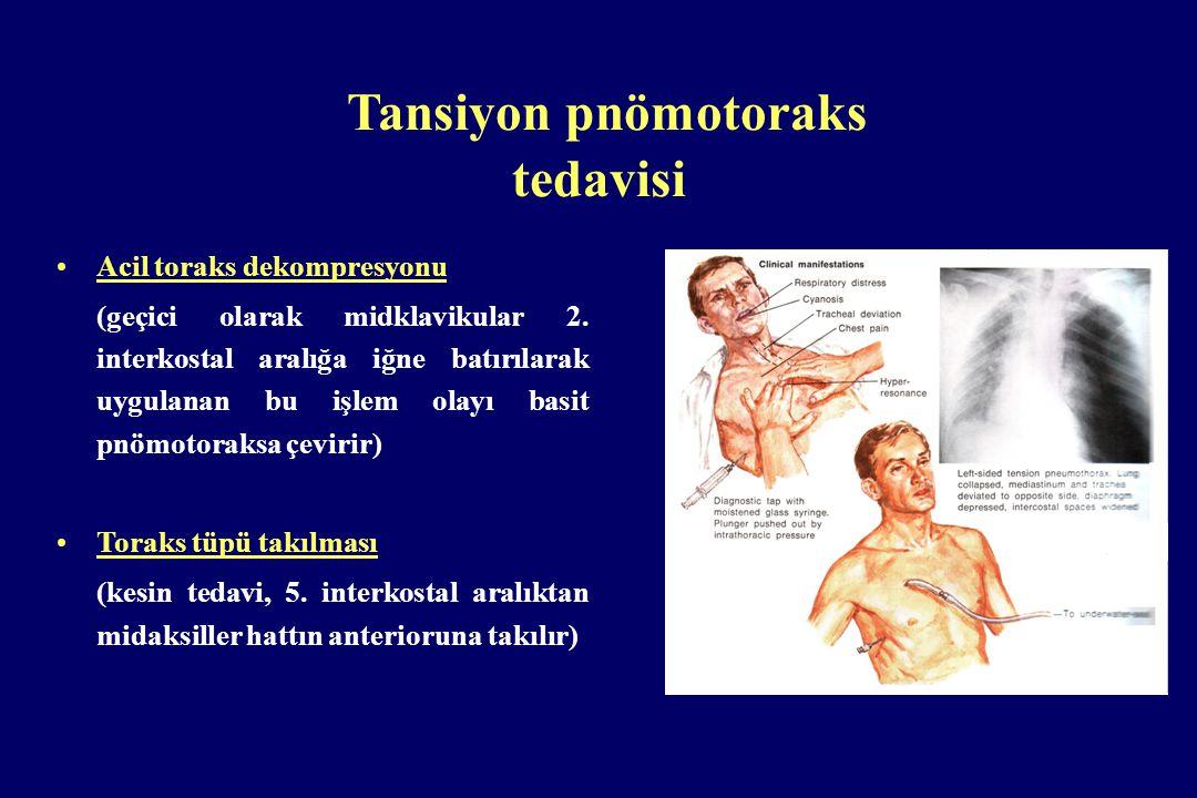 Tansiyon pnömotoraks tedavisi Acil toraks dekompresyonu (geçici olarak midklavikular 2. interkostal aralığa iğne batırılarak uygulanan bu işlem olayı