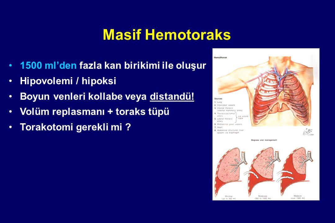 Masif Hemotoraks 1500 ml'den fazla kan birikimi ile oluşur Hipovolemi / hipoksi Boyun venleri kollabe veya distandü! Volüm replasmanı + toraks tüpü To