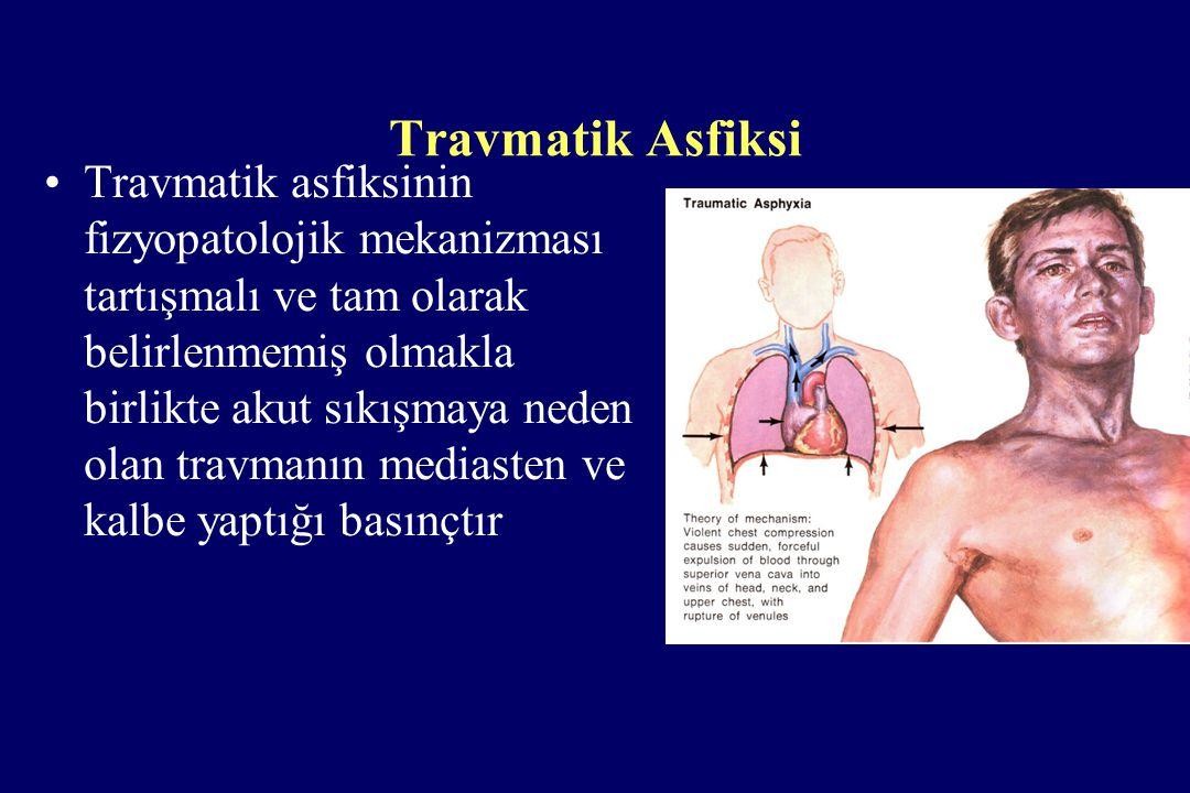 Travmatik Asfiksi Travmatik asfiksinin fizyopatolojik mekanizması tartışmalı ve tam olarak belirlenmemiş olmakla birlikte akut sıkışmaya neden olan tr