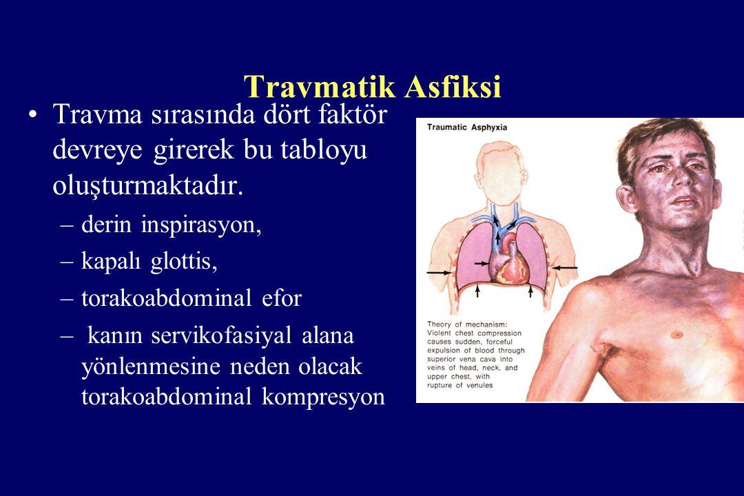 Travmatik Asfiksi Travma sırasında dört faktör devreye girerek bu tabloyu oluşturmaktadır. –derin inspirasyon, –kapalı glottis, –torakoabdominal efor