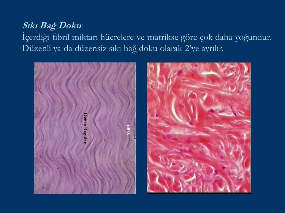 Sıkı Bağ Doku: İçerdiği fibril miktarı hücrelere ve matrikse göre çok daha yoğundur. Düzenli ya da düzensiz sıkı bağ doku olarak 2'ye ayrılır.