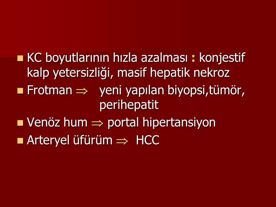 KC boyutlarının hızla azalması : konjestif kalp yetersizliği, masif hepatik nekroz KC boyutlarının hızla azalması : konjestif kalp yetersizliği, masif