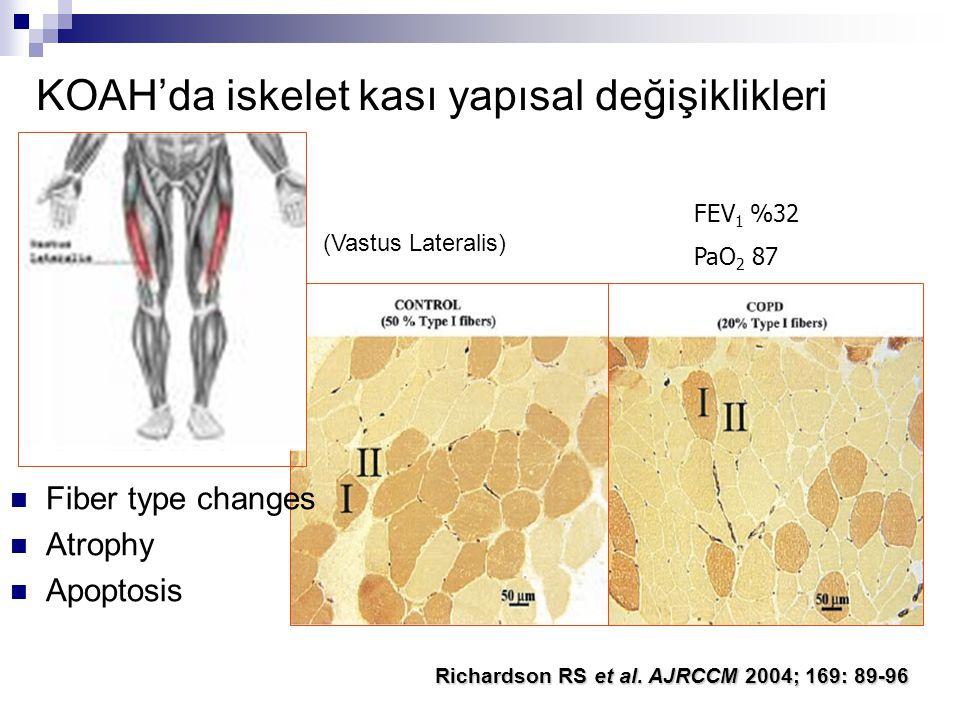 Richardson RS et al. AJRCCM 2004; 169: 89-96 (Vastus Lateralis) Fiber type changes Atrophy Apoptosis KOAH'da iskelet kası yapısal değişiklikleri FEV 1