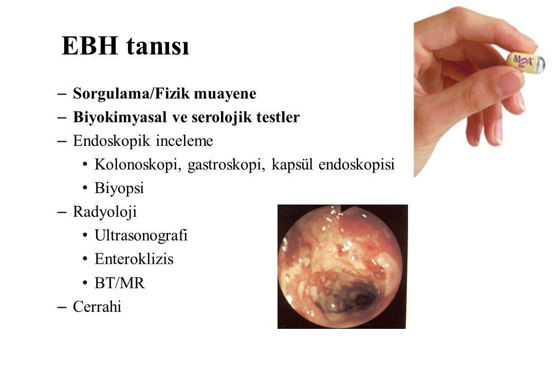 EBH tanısı –Sorgulama/Fizik muayene –Biyokimyasal ve serolojik testler –Endoskopik inceleme Kolonoskopi, gastroskopi, kapsül endoskopisi Biyopsi –Radyoloji Ultrasonografi Enteroklizis BT/MR –Cerrahi