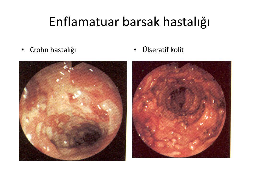Enflamatuar barsak hastalığı Crohn hastalığı Ülseratif kolit