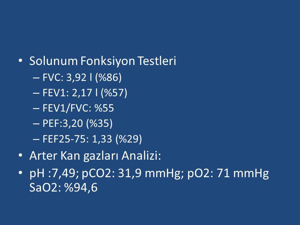 Solunum Fonksiyon Testleri – FVC: 3,92 l (%86) – FEV1: 2,17 l (%57) – FEV1/FVC: %55 – PEF:3,20 (%35) – FEF25-75: 1,33 (%29) Arter Kan gazları Analizi: